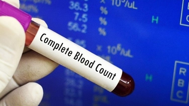Health-Tests-Direct saves you 50-81% on 400+ laboratory blood tests.